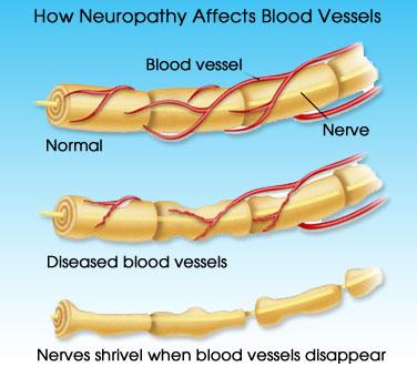 Neuropathy Diagram Of Blood Vessels